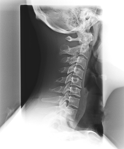 Phase 2 spinal degeneration - Velocity Chiropractic